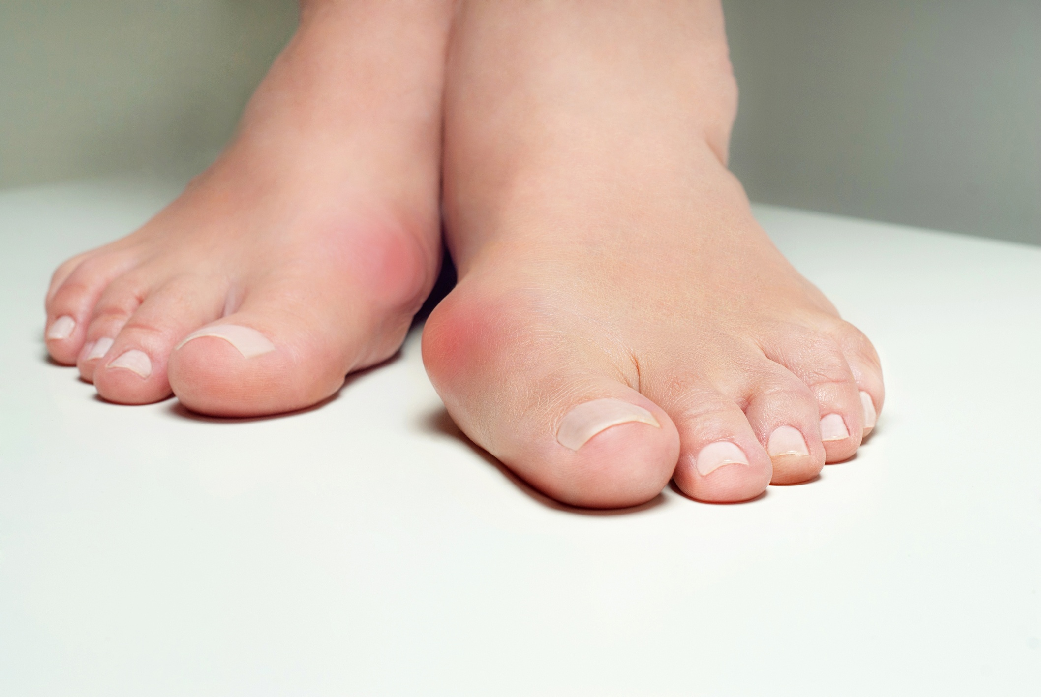 5 Foot Problems That Look Like a Bunion But Aren't | Nagy Footcare