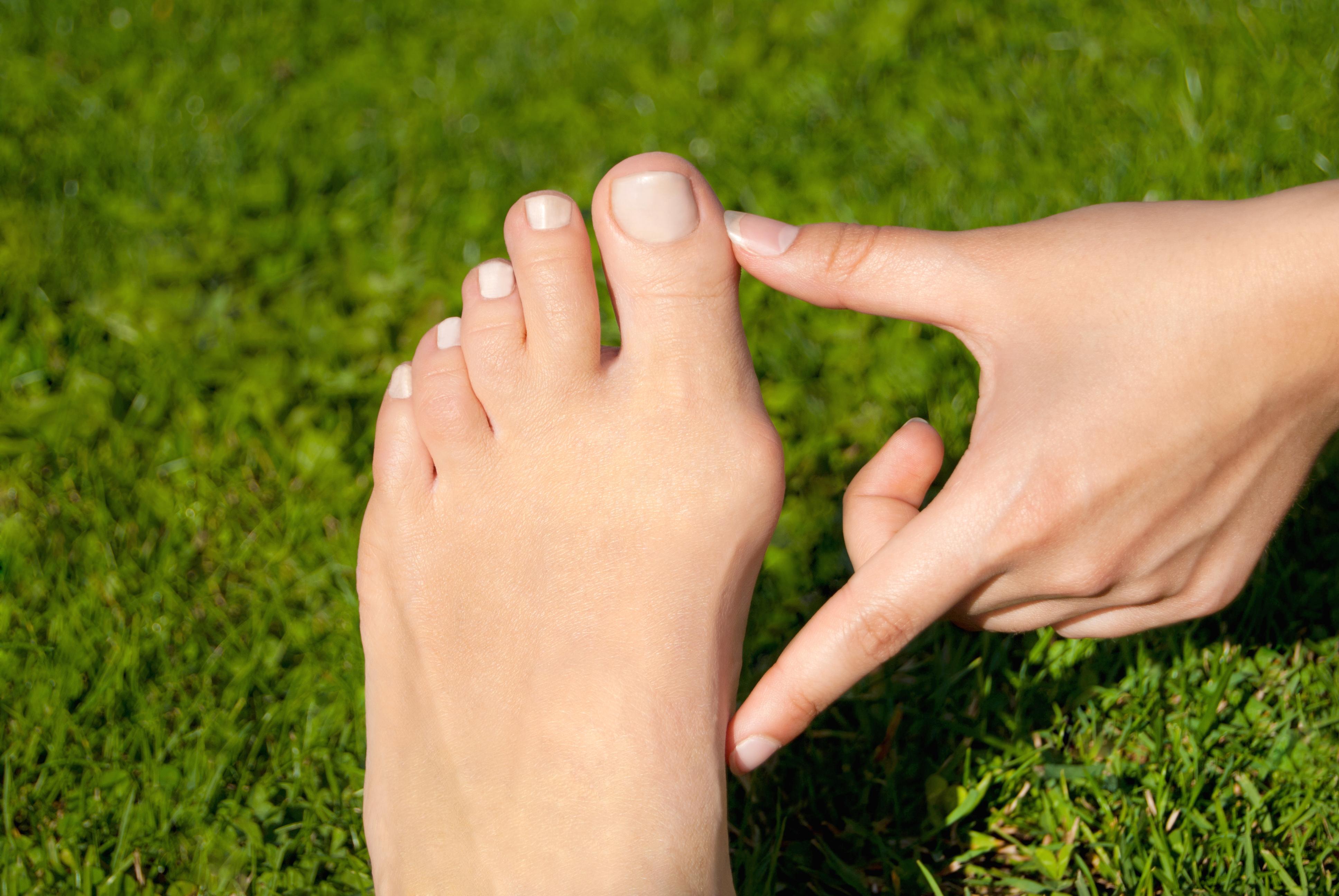 bunion on foot