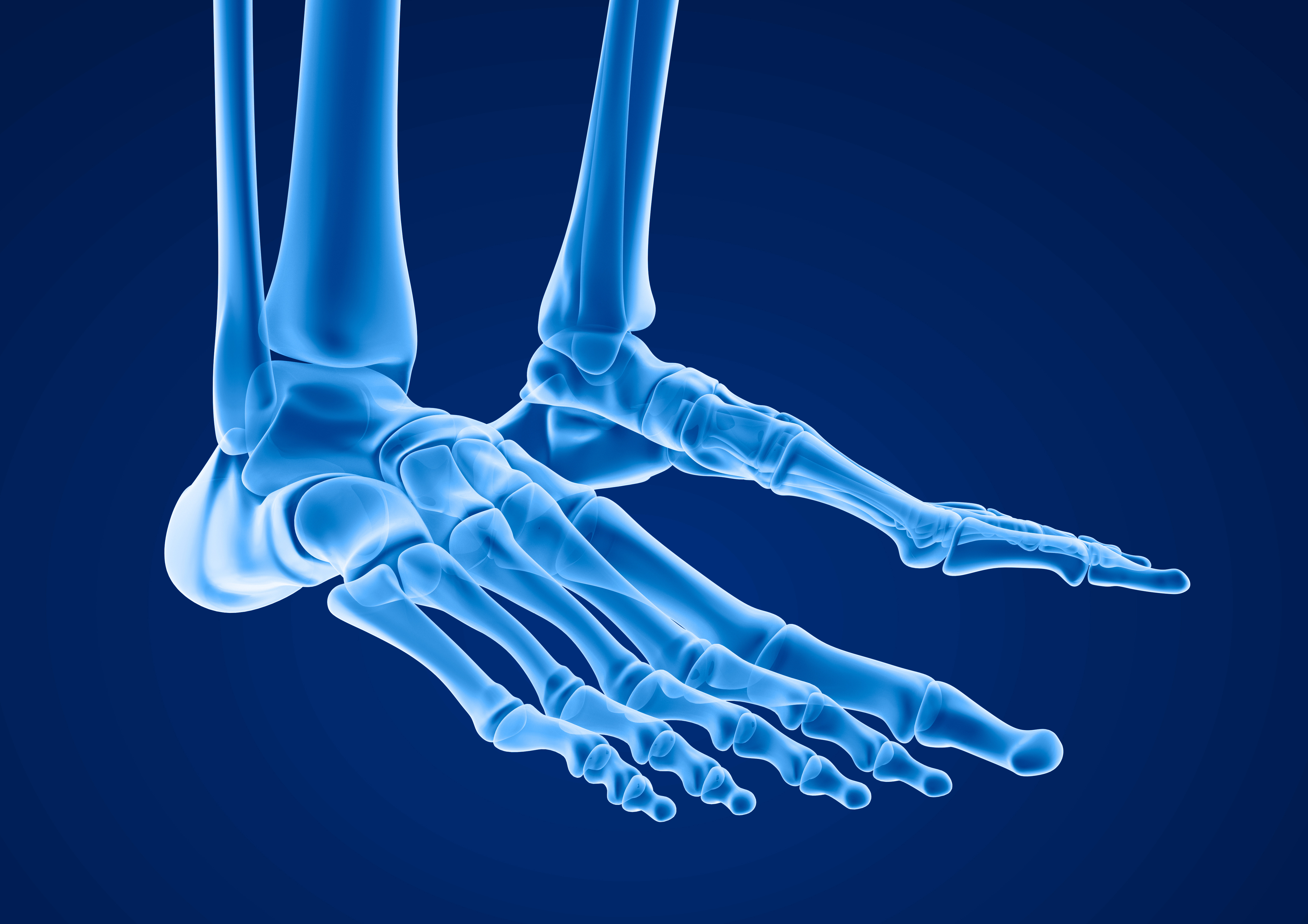 x-ray image of foot
